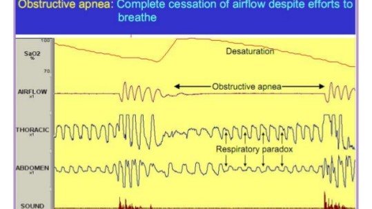 obstructive-sleep-apnea-pathophysiology-7-638
