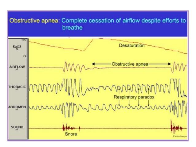 obstructive-sleep-apnea-pathophysiology-7-638